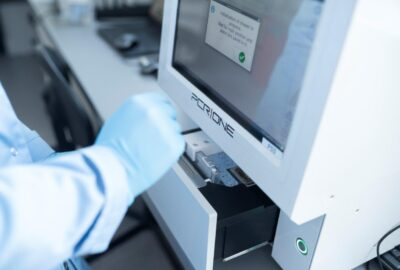 Scope Fluidics: completion of clinical trials for SARS-CoV-2 panel